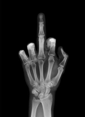 Conoce-la-historia-del-dedo-del-medio-como-gesto-obsceno-1