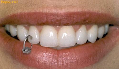 piercing-raros-diente