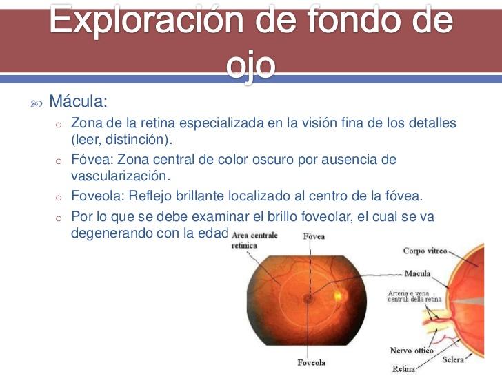 exploracin-oftalmolgica-28-728