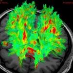 Científicos crean en laboratorio un cerebro humano